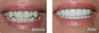 La Jolla Porcelain Veneers Before & After 01