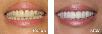 La Jolla Porcelain Veneers Before & After 02