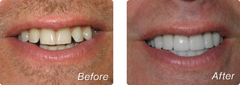 La Jolla Porcelain Veneers Before & After 03