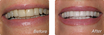 La Jolla Porcelain Veneers Before & After 5