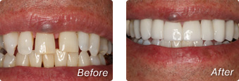 La Jolla Porcelain Veneers Before & After 6