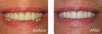 La Jolla Porcelain Veneers Before & After 7