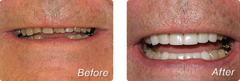La Jolla Porcelain Veneers Before & After 8