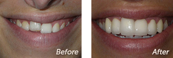 La Jolla Porcelain Veneers Before & After 10