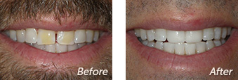 La Jolla Porcelain Veneers Before & After 11