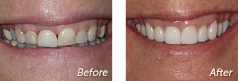 La Jolla Porcelain Veneers Before & After 12