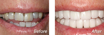La Jolla Porcelain Veneers Before & After 9